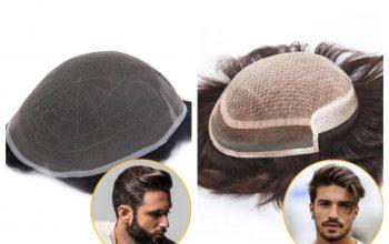 Căderea părului la bărbați se rezolvă cu Hairbro