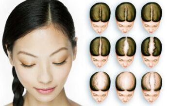 Chiar și femeile au nevoie de implant de păr. Dr. Felix este soluția